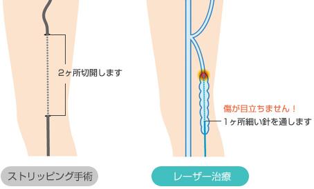下肢静脈瘤 レーザー治療