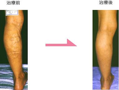 下肢静脈瘤 症例1