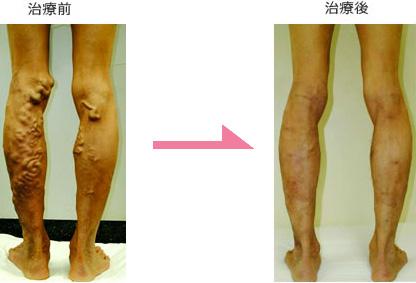 下肢静脈瘤 症例2